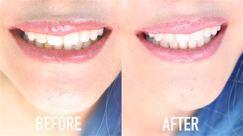 Whiten Teeth Instantly At Home in Under 10 Minutes
